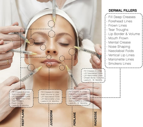 cosmetic-fillers1