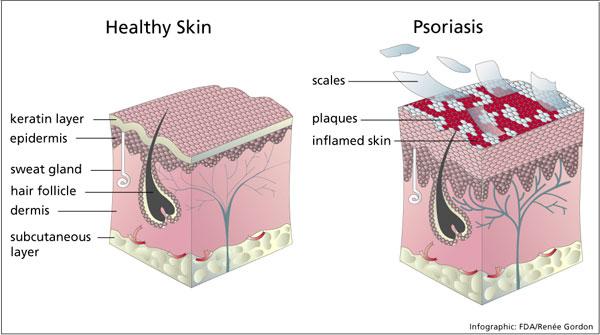 psoriasisinfog